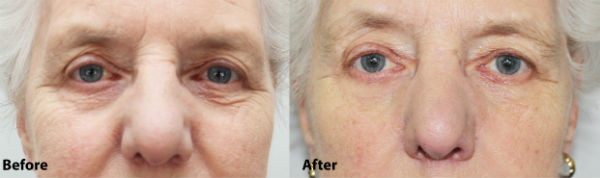 Caci Microlift Before and After